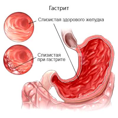 Доклад болезни органов пищеварения 7144