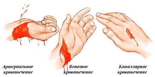 Доклад на тему первая помощь при кровотечении 8090